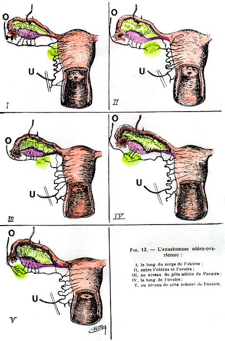 Uterine artery anatomy