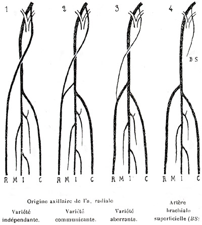 Related image with Radial Artery Anatomy