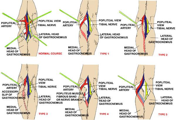Anatomy of Popliteal Fossa Bundle in Popliteal Fossa