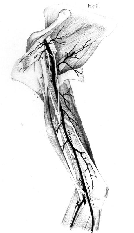 Median Nerve Around Brachial Artery  MedianNerve and Brachial Artery    Median Nerve Brachial Artery
