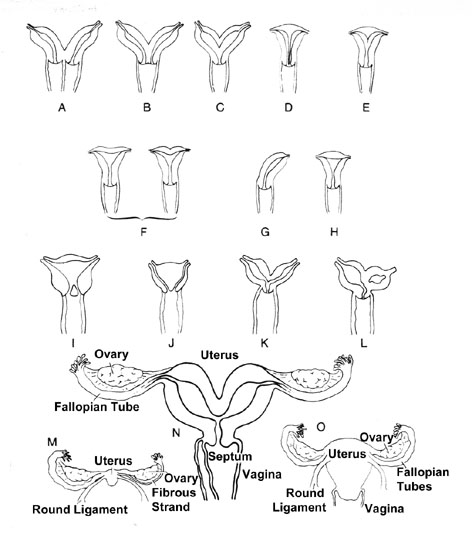 Uterine and Vaginal Variations