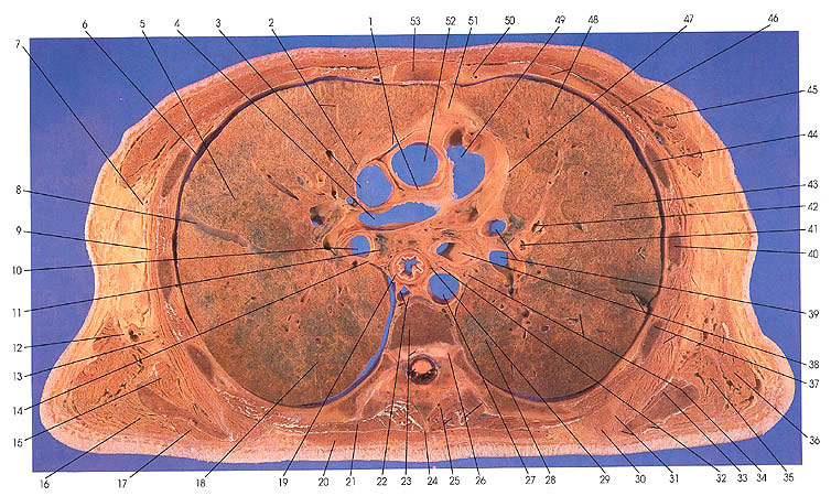 Anatomy atlases atlas of human anatomy in cross section section plate 31 ccuart Images