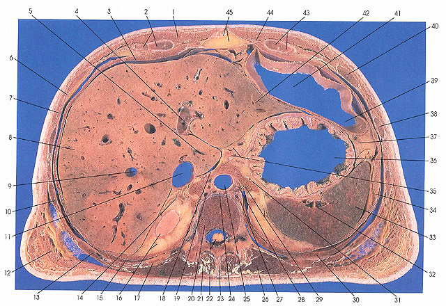 Anatomy Atlases Atlas Of Human Anatomy In Cross Section Section 5