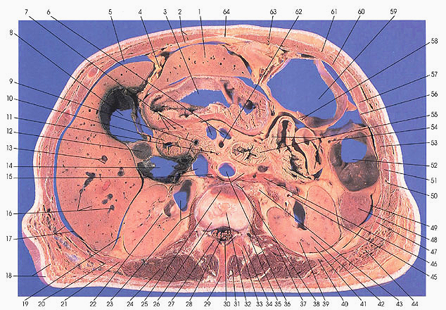 Anatomy atlases atlas of human anatomy in cross section section 5 plate 59 ccuart Images