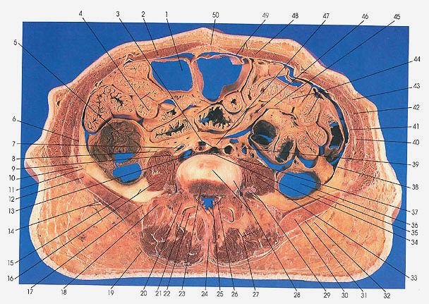 Anatomy Atlases Atlas Of Human Anatomy In Cross Section Section 6