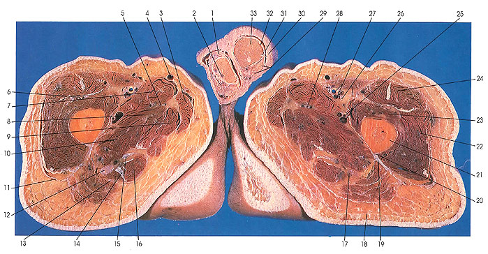 Structure Of The Testis likewise  together with Testis also Plate furthermore Anatomy Male Reproductive System. on testis cross section anatomy