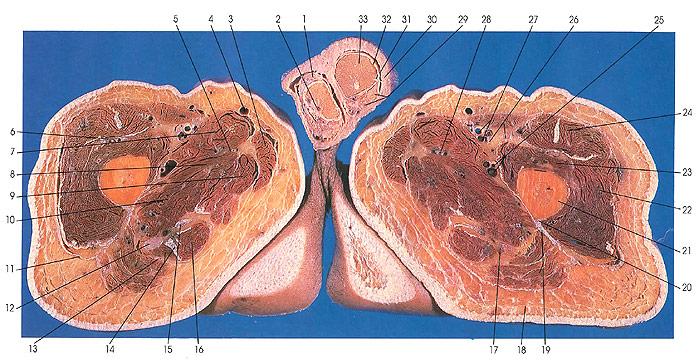 Anatomy Atlases: Atlas of Human Anatomy in Cross Section 6: Pelvis ...