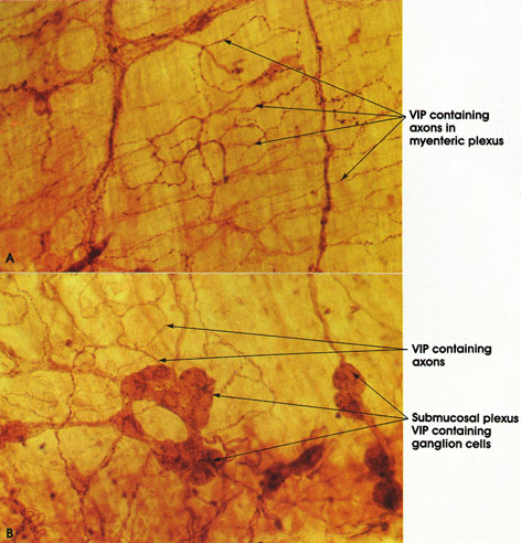 Plate 6.111 Vasoactive Intestinal Polypeptide (VIP)
