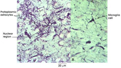 Plate 6.128 Neuroglia