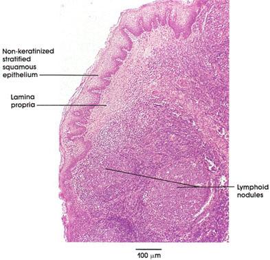 Plate 9.163 Lingual Tonsil