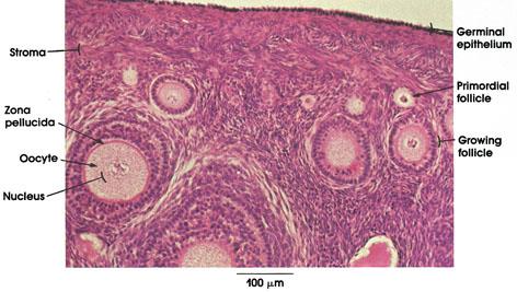 Plate 13.246 Ovary
