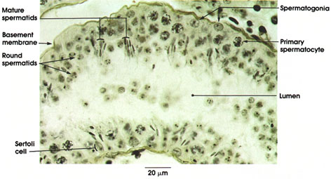 Plate 14.265 Seminiferous Tubule