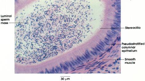 Plate 14.271 Epididymis