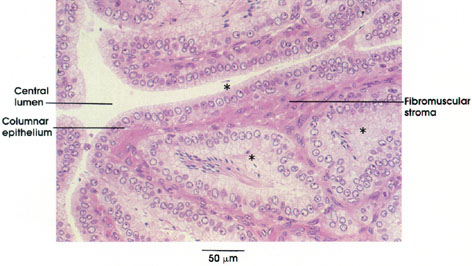 Plate 14.275 Seminal Vesicle