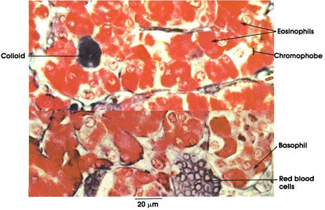 Plate 15.283 Pituitary Gland