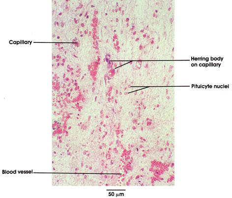 Plate 15.284 Pituitary Gland
