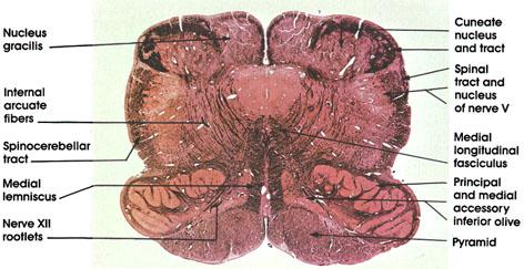 Plate 17.330 Medulla Oblongata