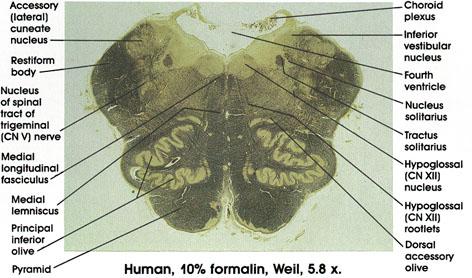 Plate 17.331 Medulla Oblongata