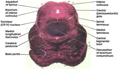 Plate 17.339 Mesencephalon