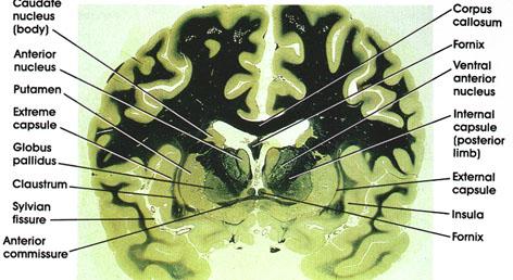 Plate 17.344 Diencephalon