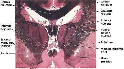 Plate 17.345 Diencephalon