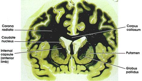 Plate 17.346 Basal Ganglia