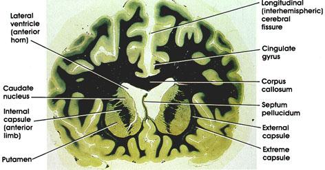 Plate 17.347 Basal Ganglia
