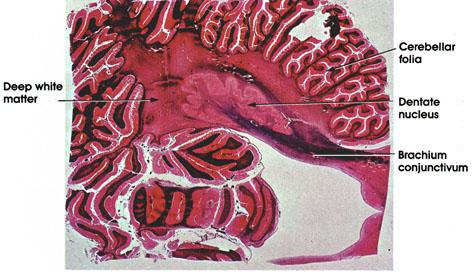 Plate 17.348 Cerebellum