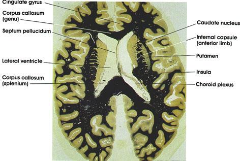 Plate 17.352 Basal Ganglia