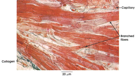 branched cardiac muscle fiber - photo #6