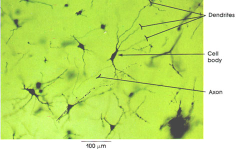 Plate 6.87 Cerebral Cortex: Pyramidal Cells