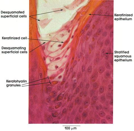 Plate 7.136 Keratinization