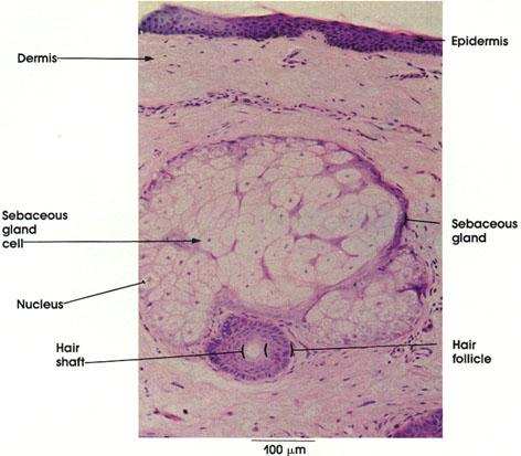 Plate 7.147 Sebaceous Gland
